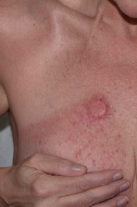 Radiation Rash